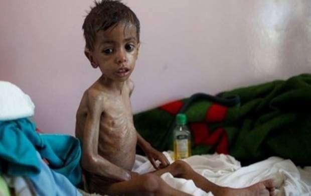 ۲۲ میلیون نفر در یمن به غذا دسترسی ندارند