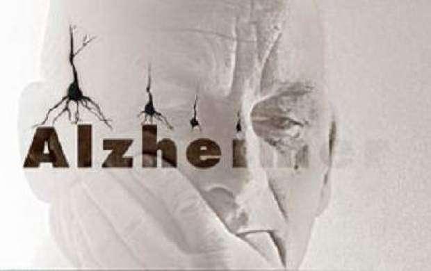 نشانههای اولیه آلزایمر چیست؟