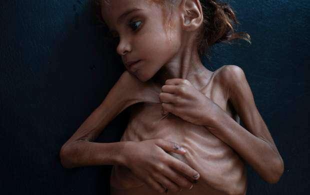۱۰ میلیون یمنی از گرسنگی شدید رنج می برند