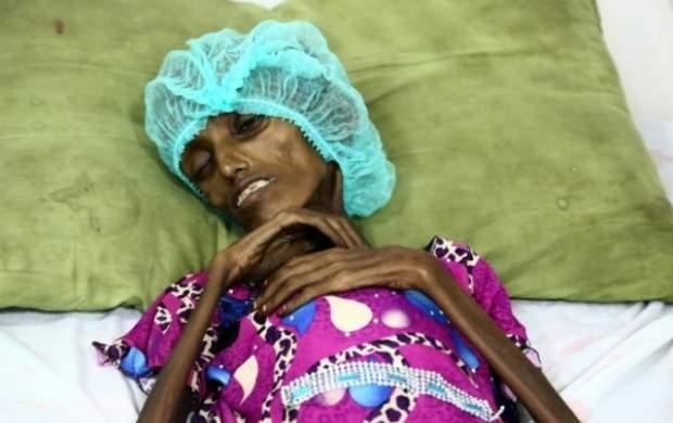 یمن با بدترین وقایع در تاریخ معاصر جهان روبروست