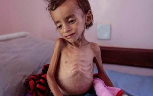 هر ۱۱ دقیقه یک کودک در «یمن» جان میدهد