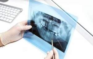 بیماریهایی که داخل دهان علامت دارند!