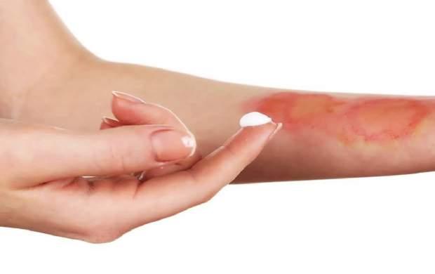 ۶ نسخه فوقالعاده برای درمان آفتاب سوختگی