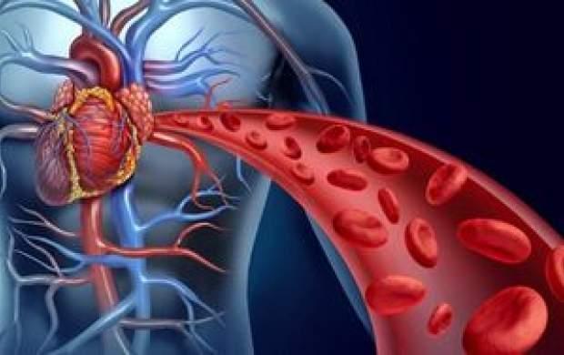 کدام خوراکیها برای تقویت گردش خون موثرند؟
