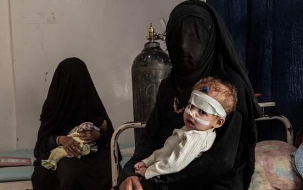 هشدار یونیسف درباره سوء تغذیه کودکان یمنی