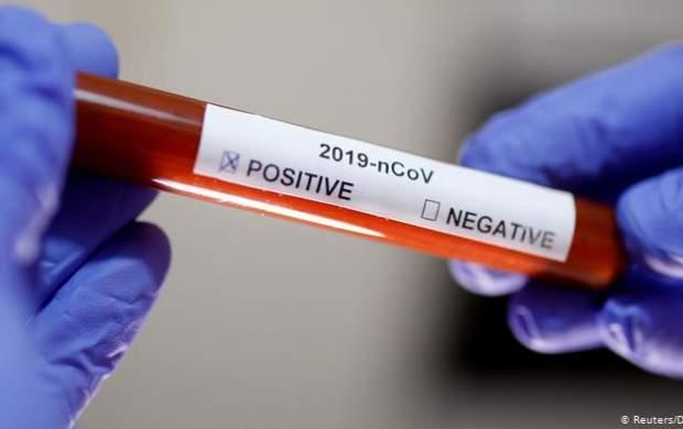 فوت یک داوطلب در آزمایش واکسن کرونا آکسفورد