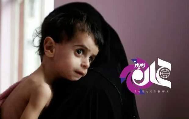 آمار تکاندهنده جنایت ائتلاف سعودی در یمن