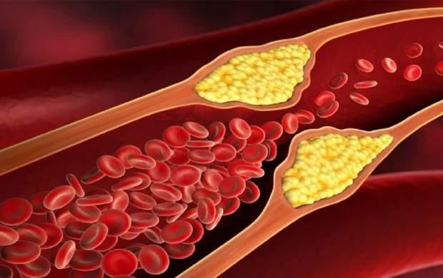 راهکارهایی برای کاهش سطح «کلسترول بد خون»