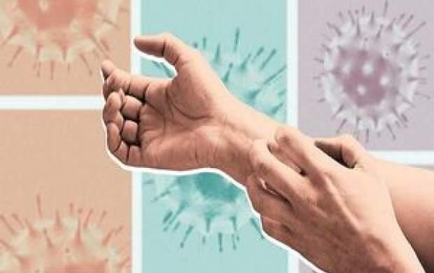 پوست انسان هدف اصلی کرونا ویروس
