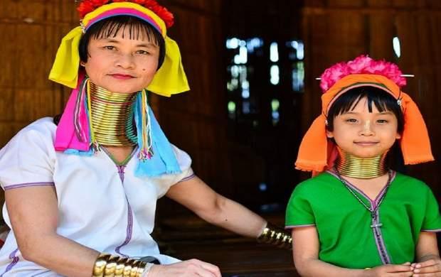 ۸ معیار عجیب زیبایی در آسیا +عکس