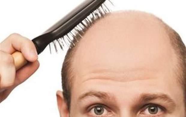 آیا ریزش مو از عوارض کرونا است؟